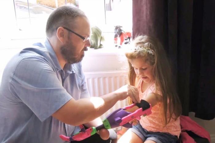 8-летняя девочка-инвалид получила дизайнерский 3D-протез (7 фото)